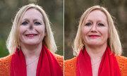 Cuộc sống của người phụ nữ Anh bị mất mũi vì căn bệnh lạ