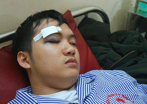 Sinh viên Giáp bị thương ở mắt. Ảnh: Đ.H