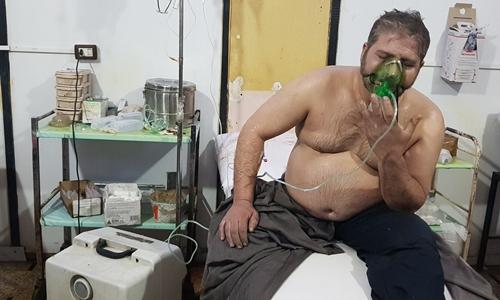 Một người đàn ông được điều trị ở Đông Ghouta sau cuộc tấn công được cho là bằng vũ khí hóa học. Ảnh: Anadolou.