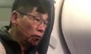 Nhân viên an ninh kéo lê Việt kiều Mỹ David Dao đòi bồi thường