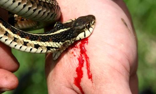 Bác sĩ nhiều sai sót trong vụ bệnh nhân chết sau khi bị rắn cắn