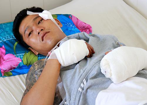 Anh Linh đang điều trị tại bệnh viện. Ảnh: An Phước