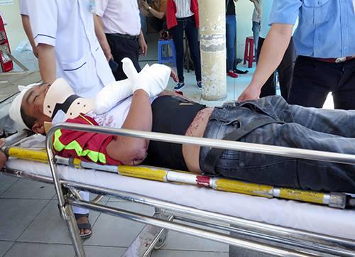 Các nạn nhân bị thương được đưa vào Bệnh viện đa khoa tỉnh Khánh Hòa. Ảnh: Xuân Ngọc.