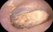 Bác sĩ Anh gắp cục bông kẹt trong tai bệnh nhân suốt 2 năm