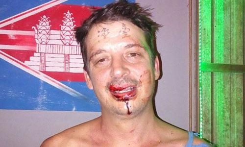 Farrell bị thương sau trận đòn hội đồng vì xăm chữ Đài Loan trên trán. Ảnh: Taiwan Observer.