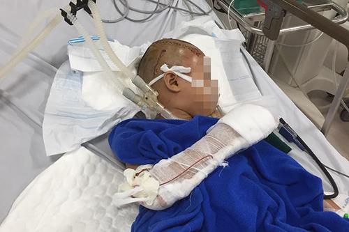 Bé trai qua cơn nguy kịch sau ca phẫu thuật kéo dài. Ảnh: Quảng Hà