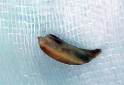 Mảnh hạt sen được các bác sĩ gắp ra khỏi phế quản cụ bà 84 tuổi. Ảnh: Bệnh viện cung cấp