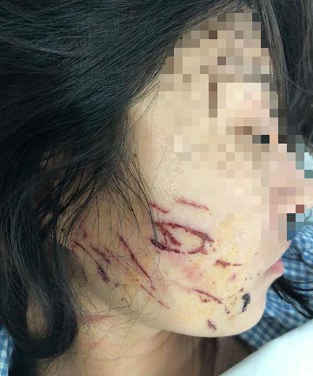 Khuôn mặt nạn nhân cũng bị nhiều vết rách. Ảnh: Lam Sơn.