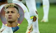 Vì sao Neymar đi tất rách ở World Cup?