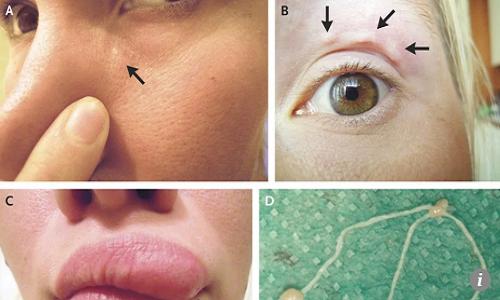 Các giai đoạn di chuyển của ký sinh trùng trên mặt người phụ nữ Nga. Ảnh: Vladimir Kartashev.
