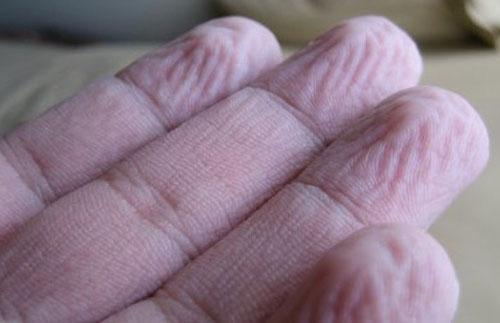 Ngâm nước lâu đầu ngón tay nhìn rất đáng sợ. Ảnh minh họa.