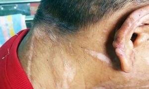 Bộ trưởng Lao động đề nghị xử nghiêm vụ cô gái ở Kon Tum bị bạo hành