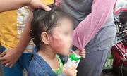 Bảo mẫu tát bé gái sưng mặt ở Sài Gòn bị bắt
