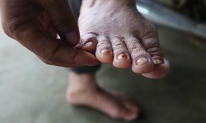 Hàng trăm người dân vùng ngập bị mắc bệnh da liễu