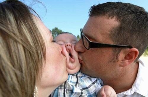 Nụ hôn bất ngờ.