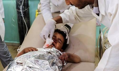 [Caption]Ảnh: Một đứa trẻ được điều trị tại bệnh viện ở Saada, Yemen sau vụ không kích hôm nay. Ảnh: AFP.