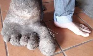 Củ khoai tây 8 kg giống bàn chân người ở Brazil
