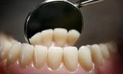 Cấu tạo và quá trình tiến hóa của những chiếc răng