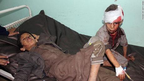 Nhiều trẻ em bị thương sau vụ không kích nhầm vào xe bus trường học ở Yemen hôm 9/8. Ảnh: CNN.