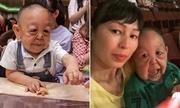 Căn bệnh hiếm khiến cậu bé 6 tuổi Kazakhstan trông như ông lão