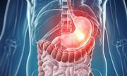 Cách bộ máy tiêu hóa xử lý thức ăn trong cơ thể người
