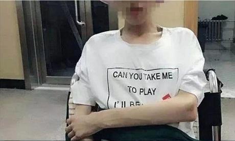 Xiaoxian hồi phục sau 40 ngày hôn mê vì giảm cân quá đà. Ảnh: SCMP.