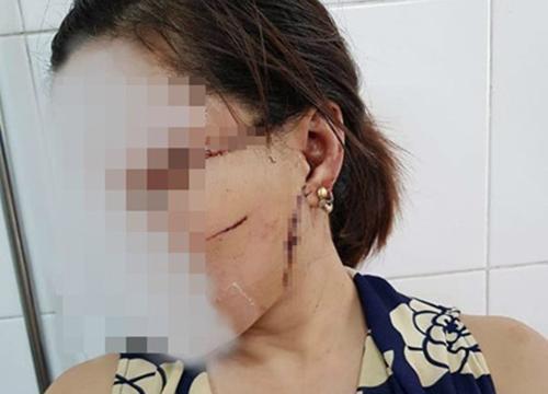 Chị Oanh bị thương ở mặt và nhiều chỗ khác trên người.