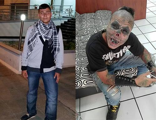 Eric Yeiner Hincapié Ramírez trước (trái) và sau khi phẫu thuật thành đầu lâu. Ảnh: Facebook