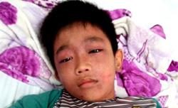 Nam sinh lớp 6 đang được điều trị tại Bệnh viện Phú Quốc. Ảnh: An Nhiên.