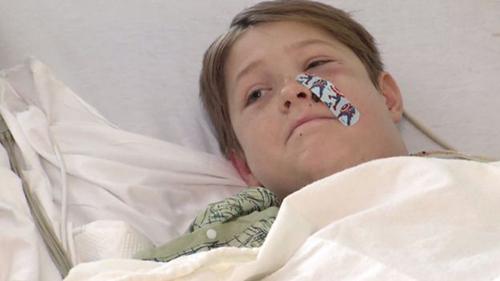 Cunningham đang hồi phục trong bệnh viện. Ảnh: CBS