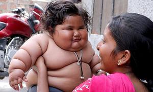 Bé gái Ấn Độ hơn một tuổi nặng 25 kg không thể ngừng ăn