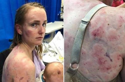 Bà mẹ Australia bầm dập cơ thể khi che chắn cho con trong mưa đá - ảnh 1