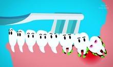 Nguồn gốc của răng khôn và lý do cần nhổ bỏ