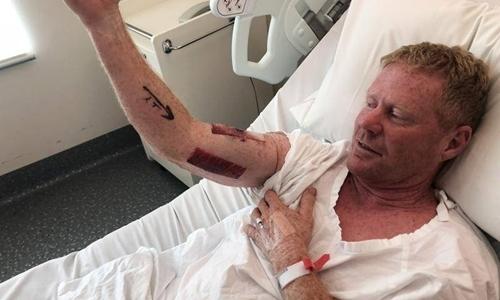 Người lướt sóng Australia đấm cá mập để thoát thân