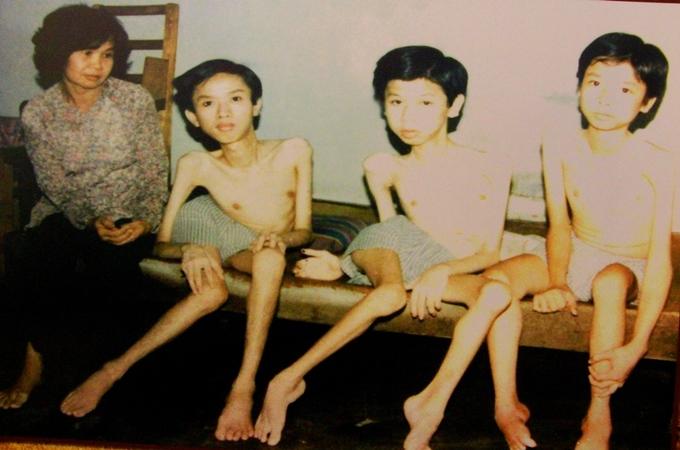 Nỗi đau da cam di truyền qua bốn thế hệ người Việt