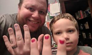 Ông bố sơn móng tay để bảo vệ con trai bị bắt nạt