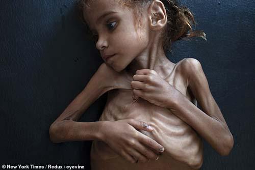 Bức ảnh chụp cơ thể chỉ còn da bọc xương của Amal Hussain. Ảnh: New York Times.