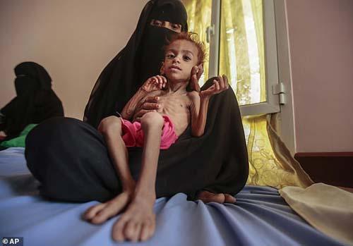 Người phụ nữ ôm đứa trẻ bị suy dinh dưỡng nặng tại bệnh viện lưu động của UNICEF ở Aslam, Yemen. Ảnh: AP.