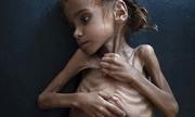 Bé gái trơ khung xương gây chấn động về nạn đói ở Yemen