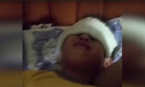 Một học sinh bị thương do tiếp xúc với tia cực tím tại trường tiểu học Thực nghiệm Tiếng Anh Dagang, thành phố Thiên Tân, Trung Quốc. Ảnh: SCMP