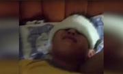 Hàng chục học sinh Trung Quốc bị bỏng nặng vì đèn tia cực tím tại lớp