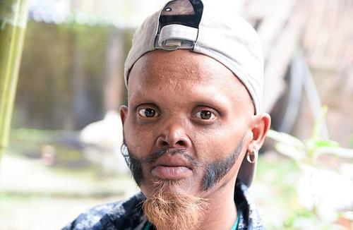 Gương mặt bình thường của Katuwal. Ảnh: Carters.