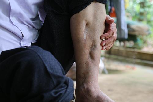 Chân trái của ông gãy nát trong một vụ nổ do tháo bom. Ảnh:Hoàng Táo