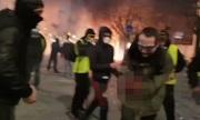 Người biểu tình áo vàng Pháp bị nổ nát bàn tay khi cầm lựu đạn cay