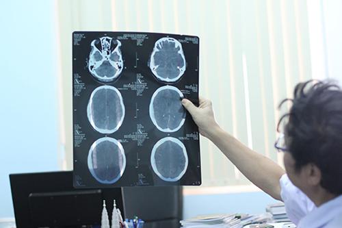 Bệnh viện đa khoa tỉnh Quảng Trị khẳng định nguyên nhân tử vong là chấn thương sọ não nghiêm trọng. Ảnh: Quang Hà