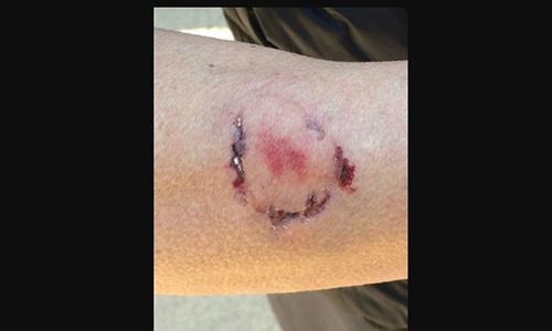 Vết cắn trên tay nạn nhân. Ảnh: Cảnh sát quận East Bay Regional Park, California, Mỹ.