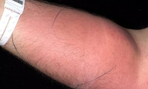 Cánh tay sưng đỏ vì tiêm tinh dịch vào tĩnh mạch trong nhiều tháng gây nhiễm trùng. Ảnh: Lisa Dunne.