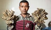 'Người cây' Bangladesh tái nhập viện vì bệnh nặng hơn