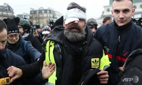 Jerome Rodrigues bị thương ở mắt trong cuộc biểu tình ngày 27/1. Ảnh: AFP.