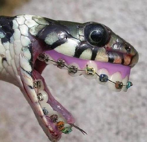 Khi rắn niềng răng.